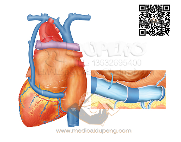 heart_with_zoom_watermarked